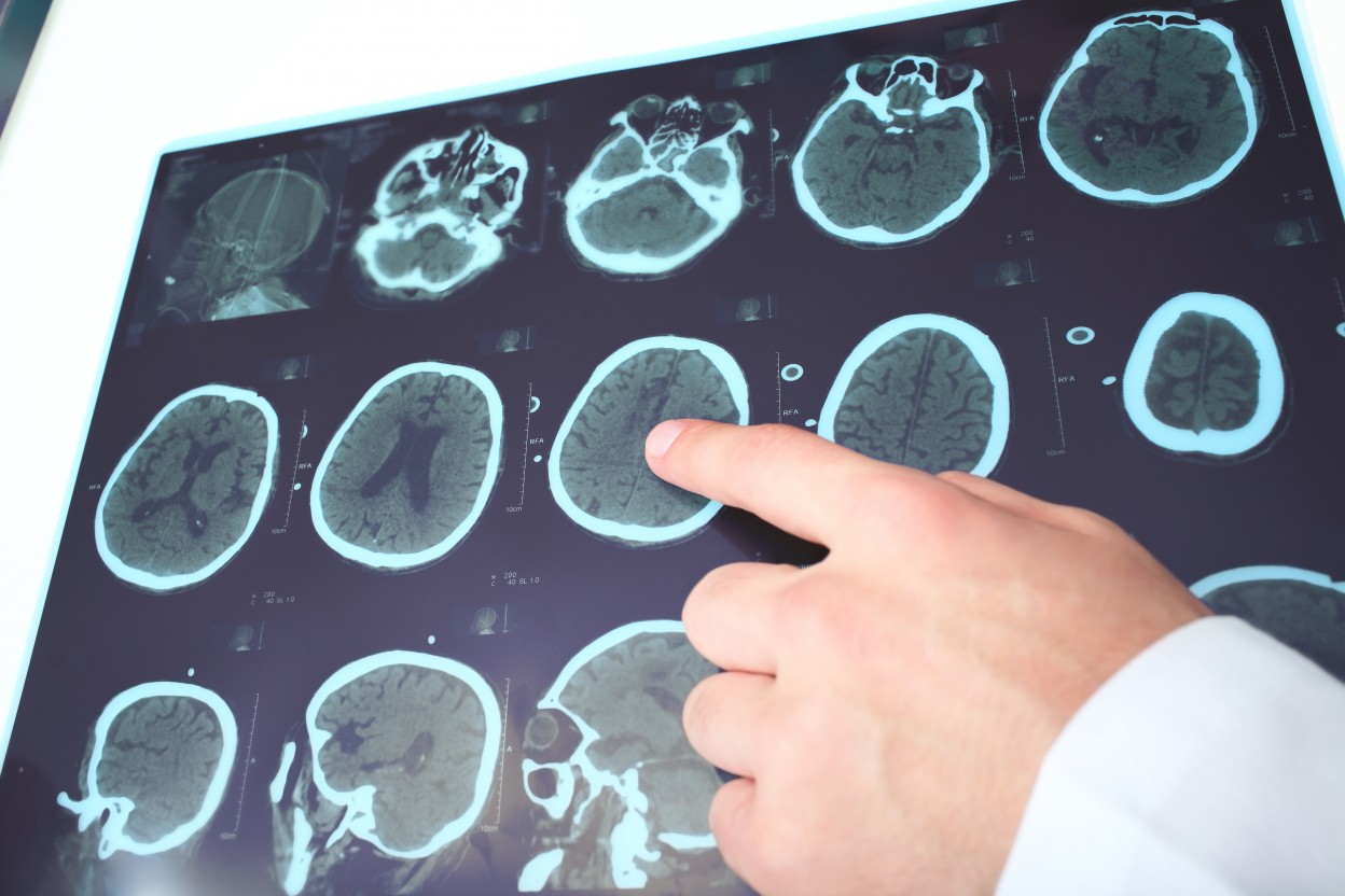 Young Fabry Disease Patients Show Brain Lesions in the Absence of Clinical History of Stroke