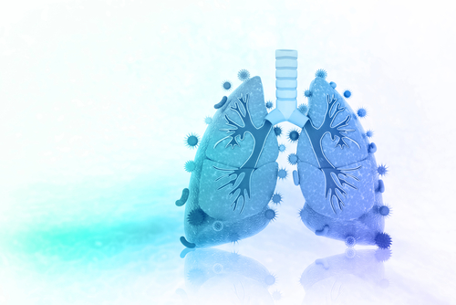 Early Treatment Initiation May Prevent Lung Function Decline in Fabry Disease Patients, Study Suggests