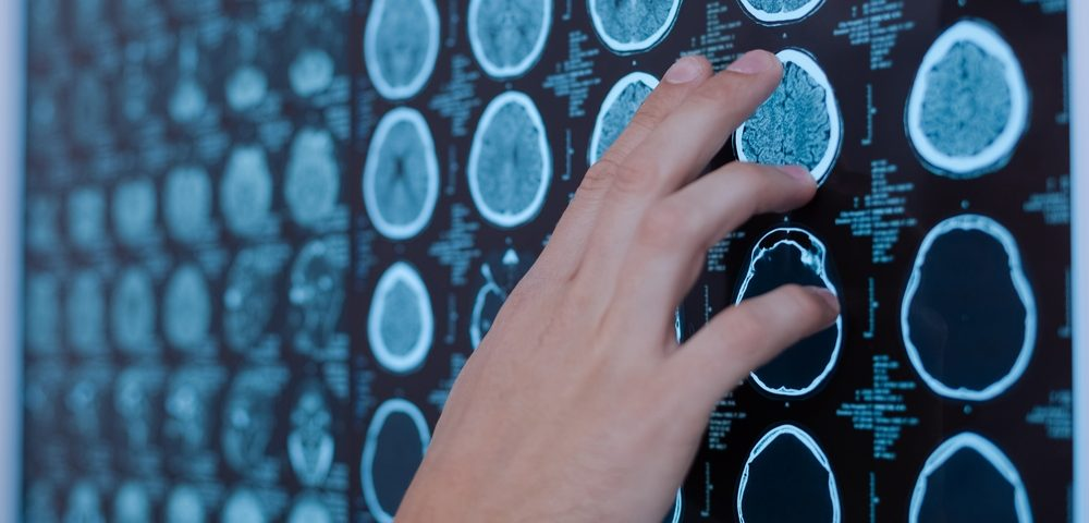 Absence of Lesions in Two Specific Brain Regions May Help Distinguish Fabry Disease from MS, Study Shows
