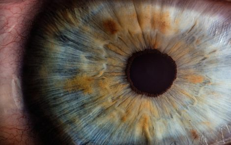 Imaging Technique That Detects Changes in Eye Blood Vessels May Help in Early Diagnosis of Fabry, Study Says